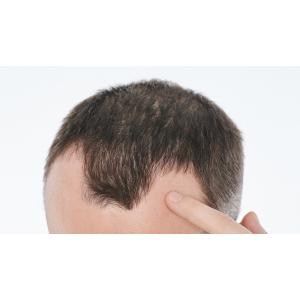 Греческий секрет против выпадения волос
